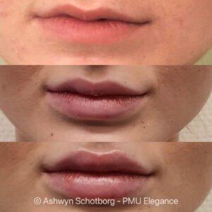 Lip progressie
