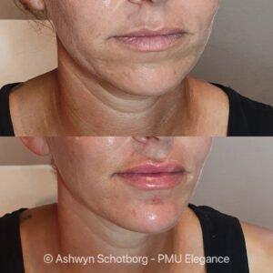 Lip en kin behandeling